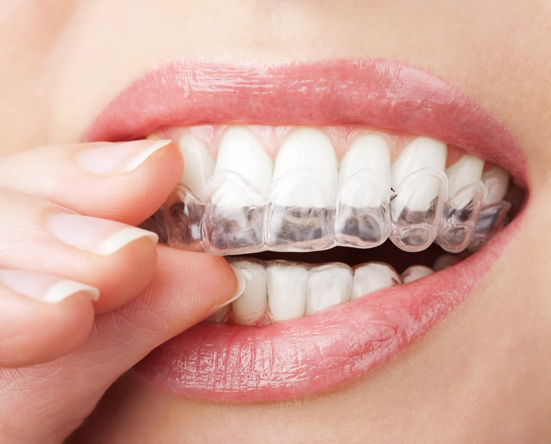 Clear aligners being put on a smilling womans mouth