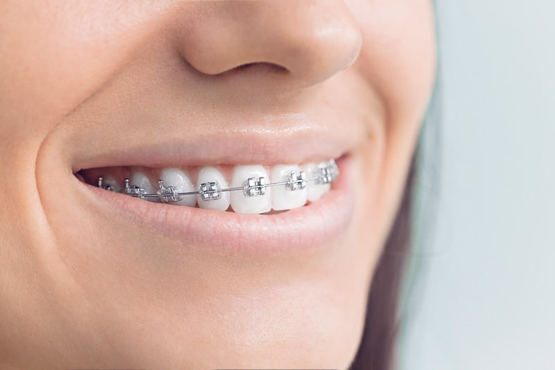 Woman smiling with traditional metal braces