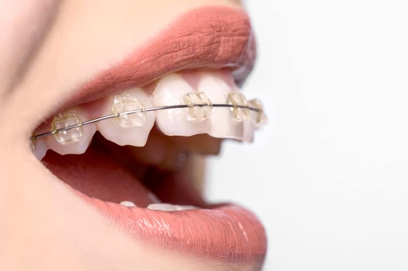 Clear ceramic braces on a smilling womans mouth