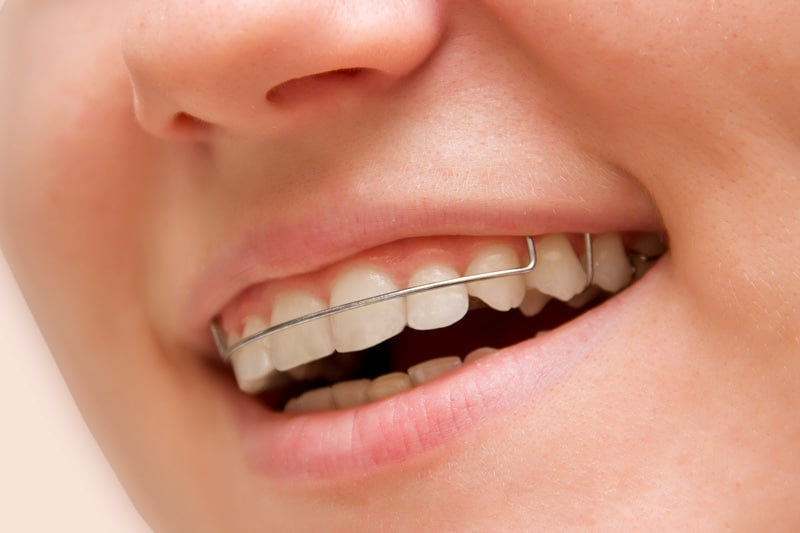 the girl smiling with retainer on teeth