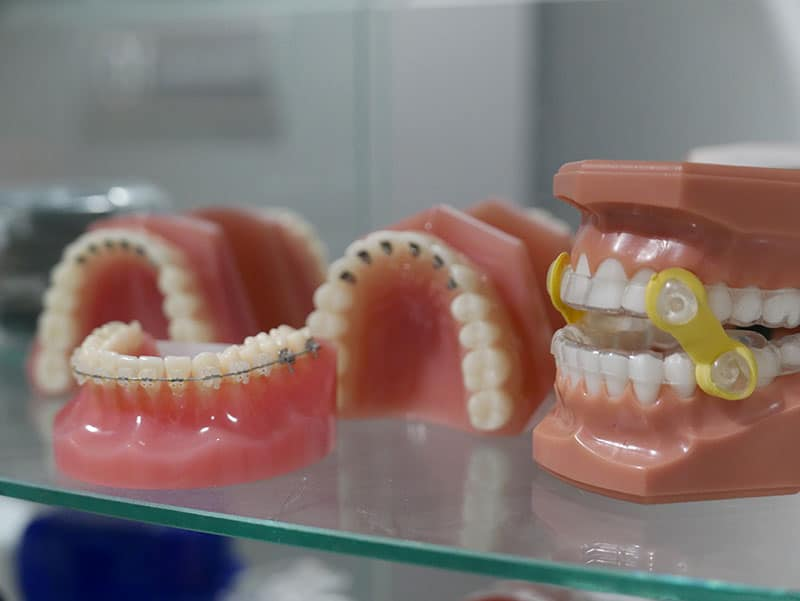 Dental applicances